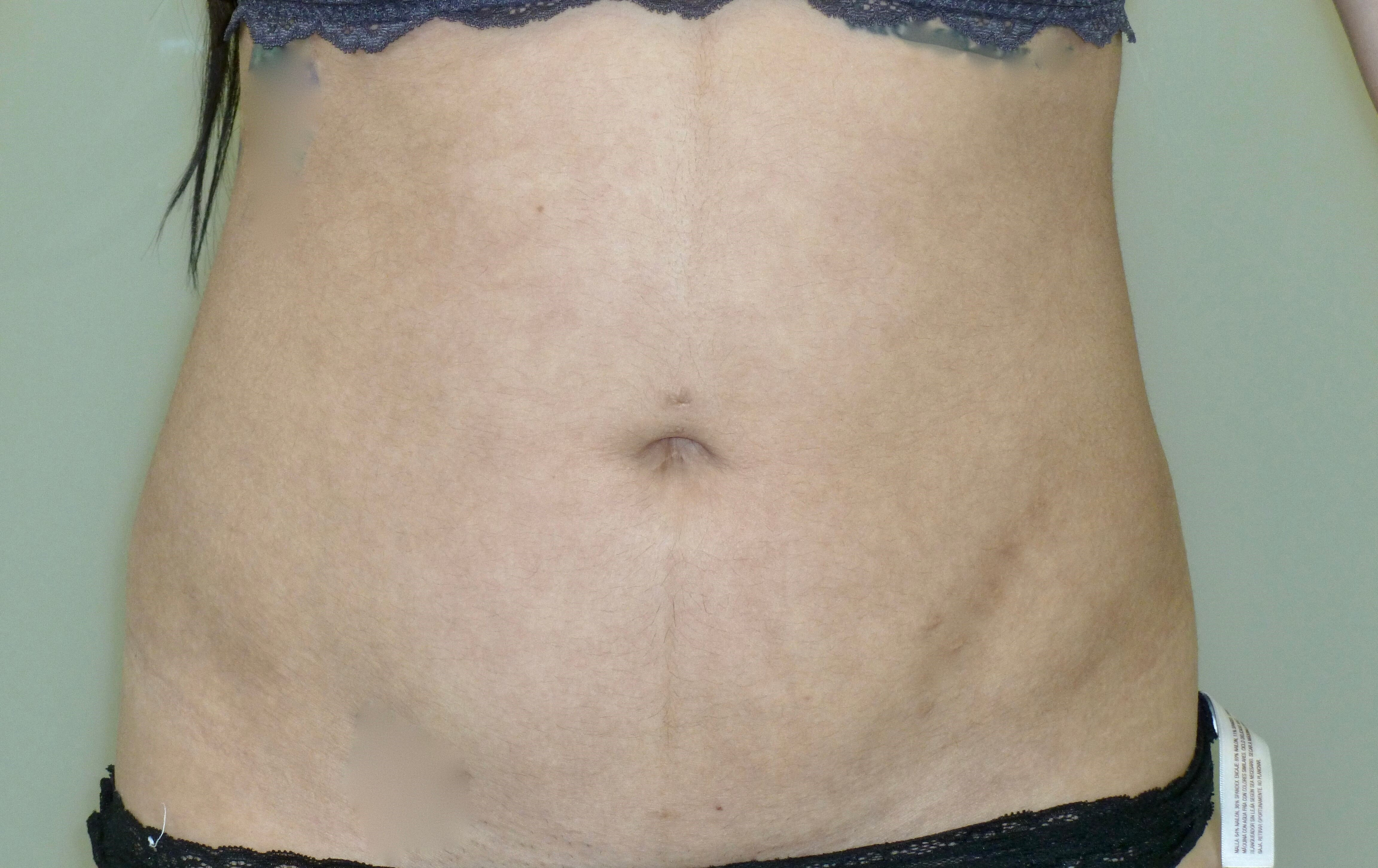 Liposuction Abdomen & Hips After