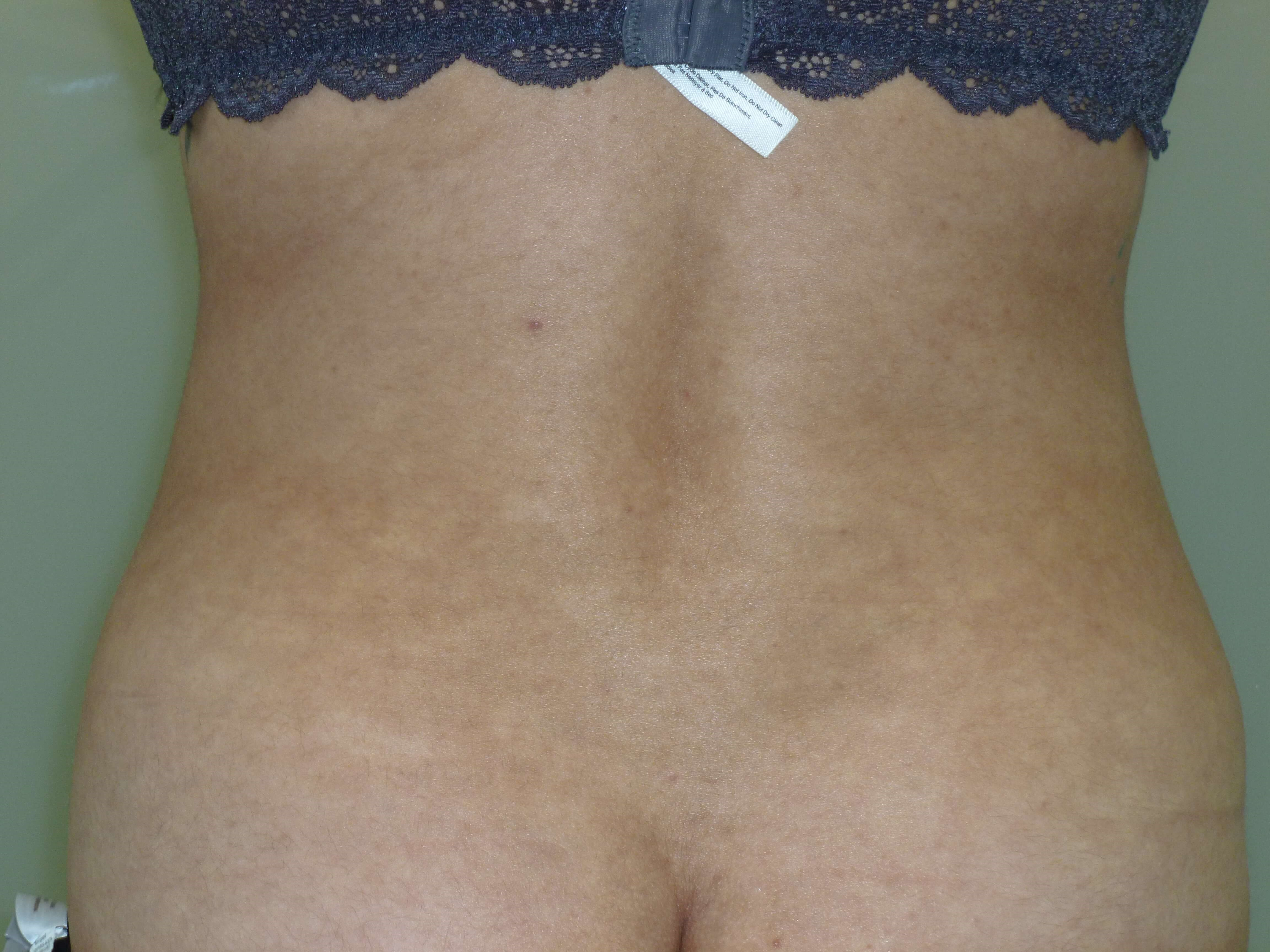 Liposuction Hips After