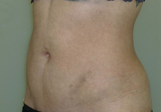 Liposuction of Abdomen & Hips After