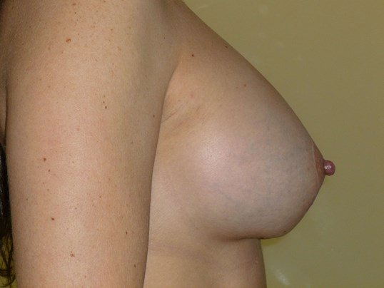 Breast Lift Revision Before Breast Revision