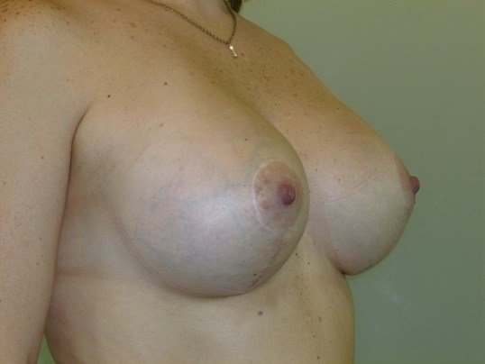 Breast Lift Revision After Breast Revision