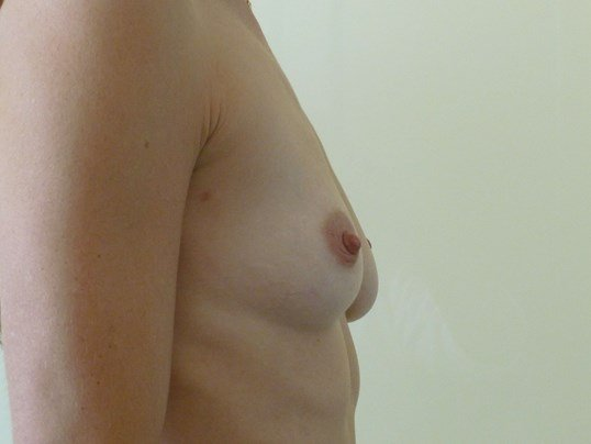RIGHT SIDE VIEW Before Breast Implants