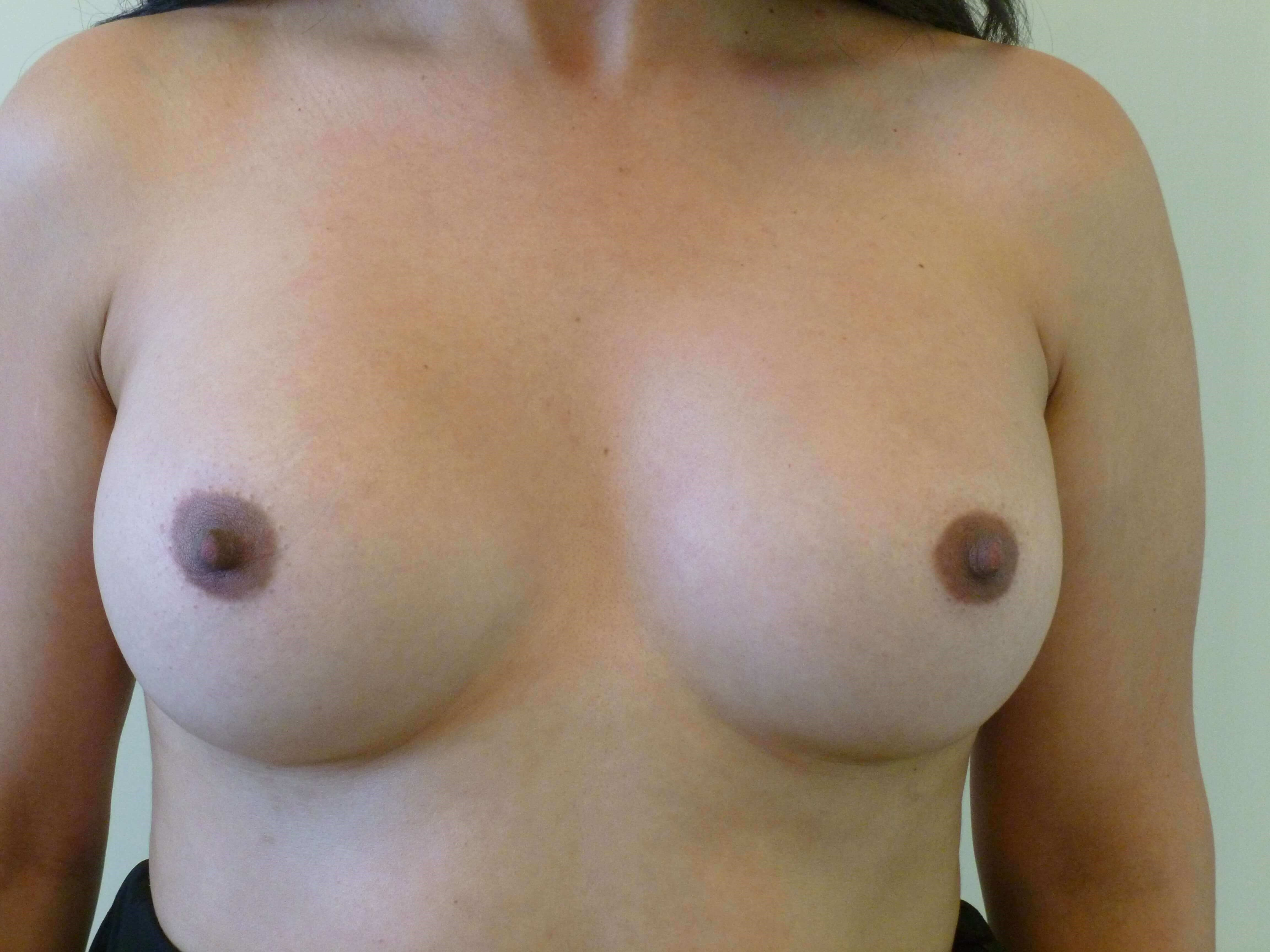 Breast Revision Surgery Before Breast Revision