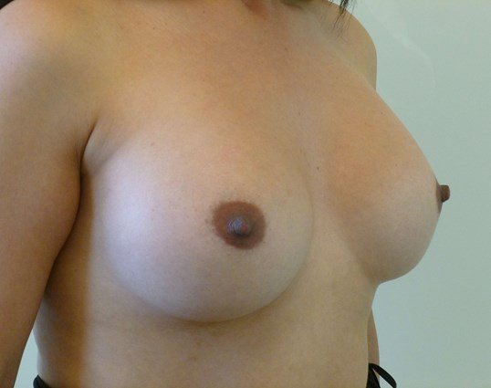 Right Three Quarter View Before Breast Revision