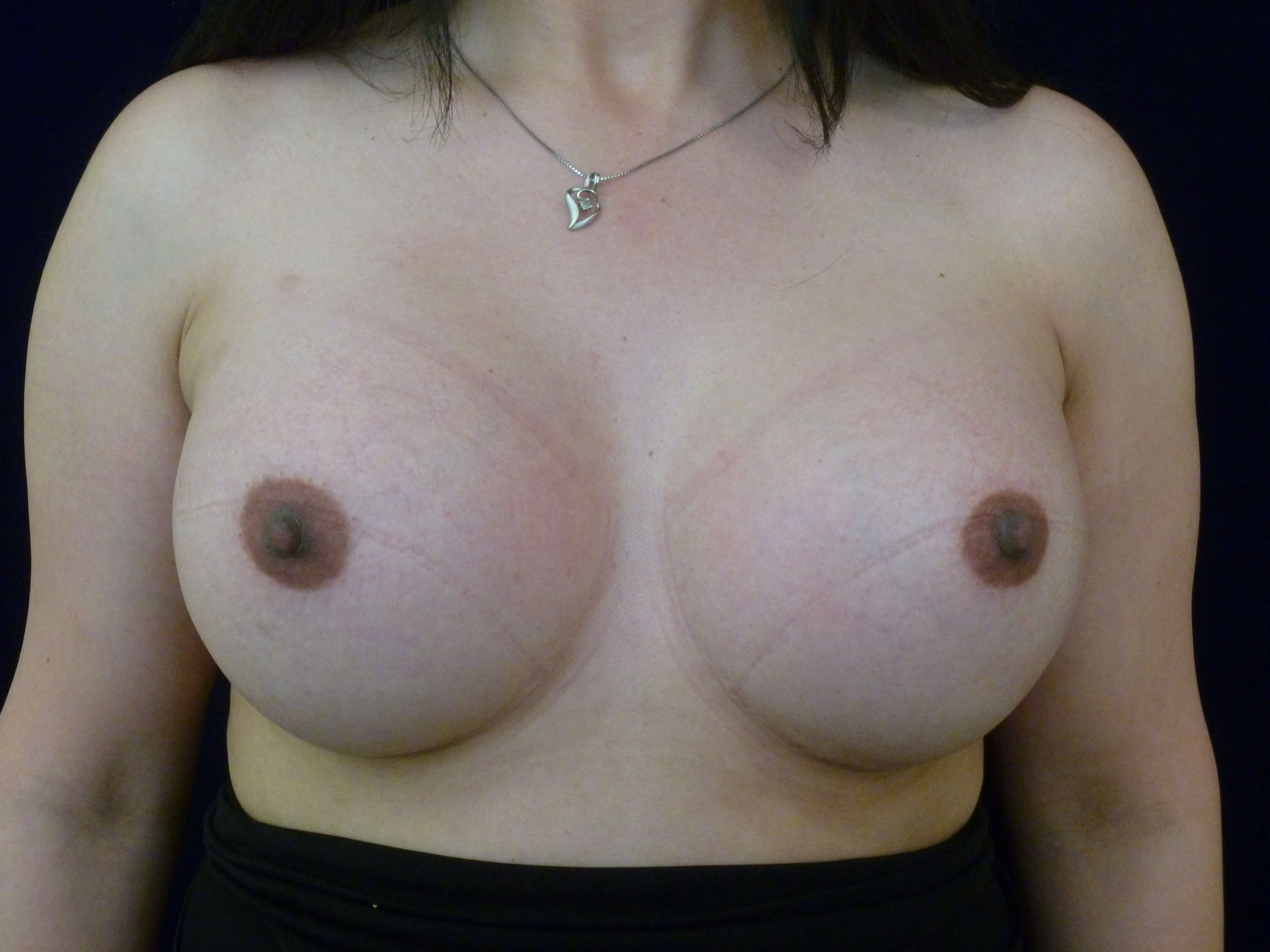 Breast Revision Surgery After Breast Revision