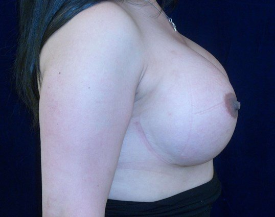 Right Side View After Breast Revision