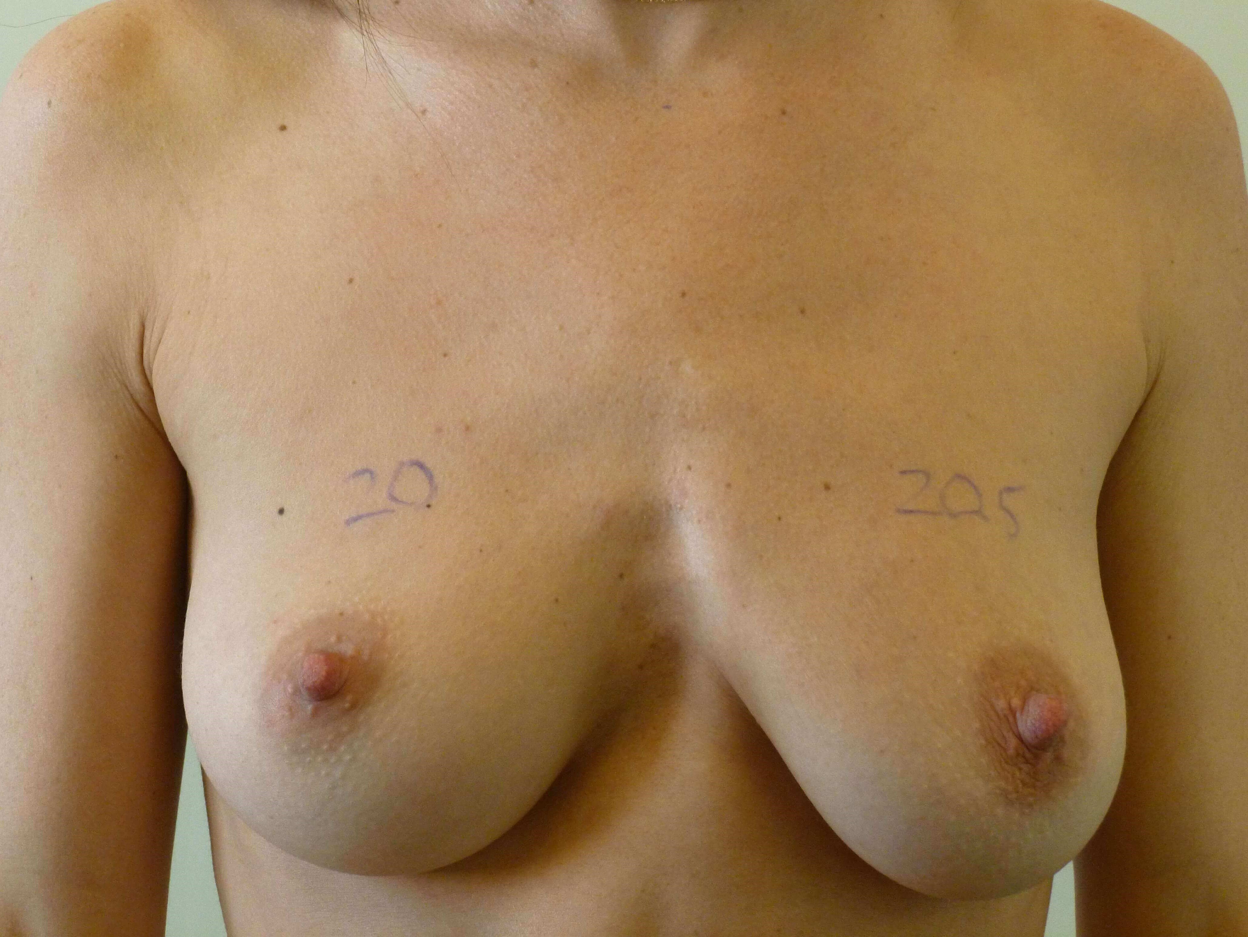 Breast Enhancement Before Implants and BodyTite