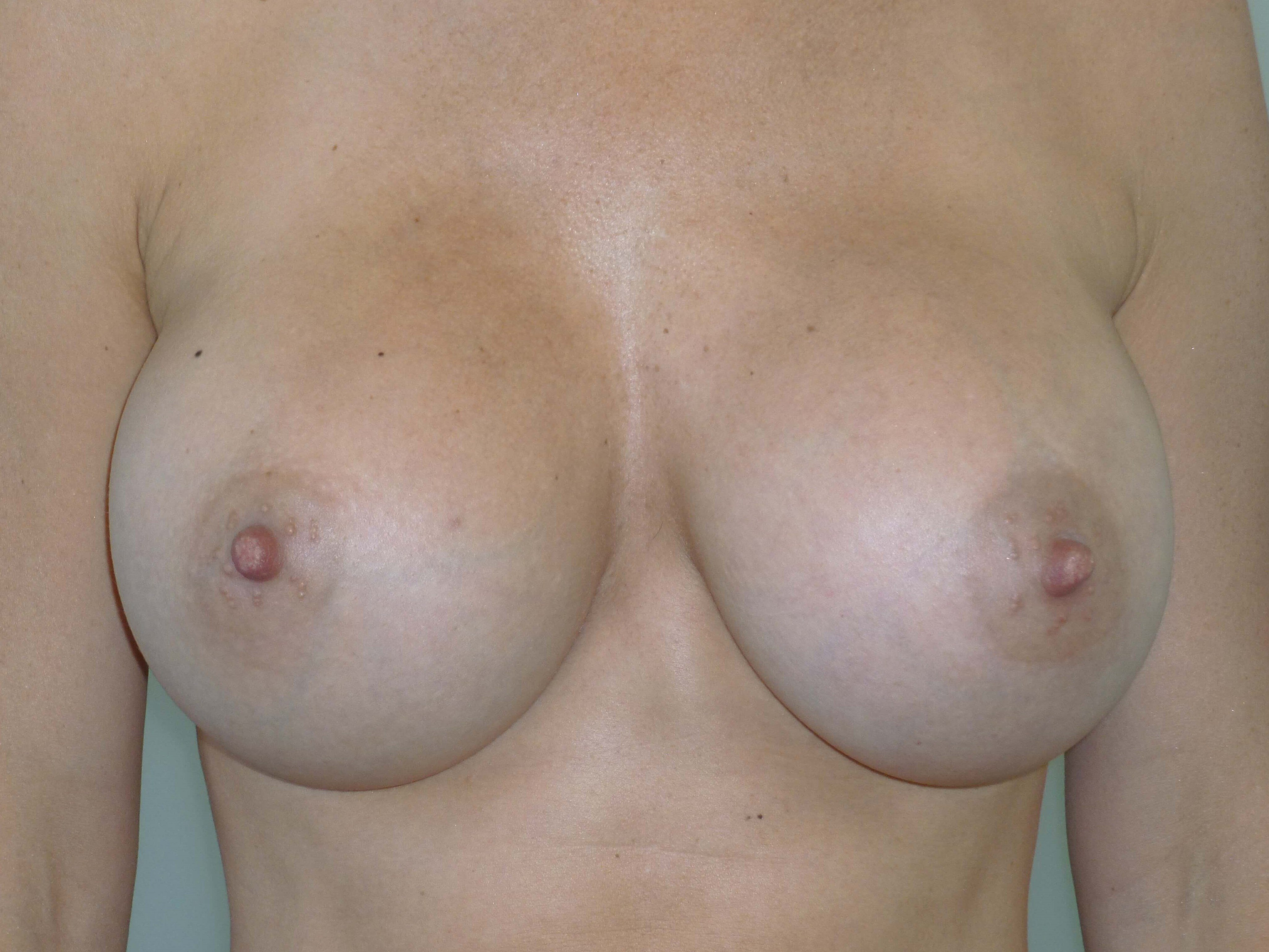 Breast Enhancement After Implants and BodyTite