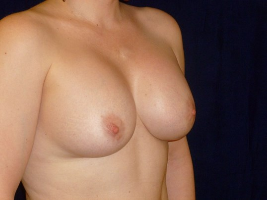 THREE QUARTER RIGHT VIEW Before Breast Revision