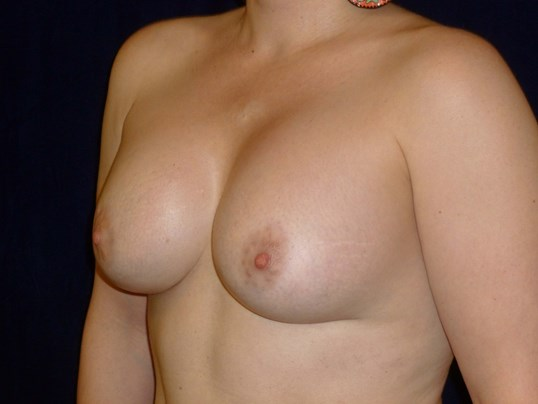 THREE QUARTER LEFT VIEW Before Breast Revision