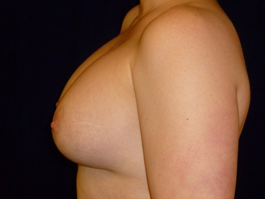 LEFT VIEW Before Breast Revision