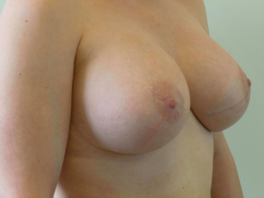 THREE QUARTER RIGHT VIEW After Breast Revision