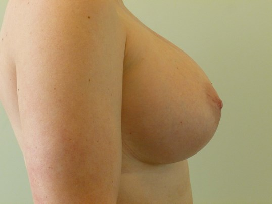 RIGHT VIEW After Breast Revision