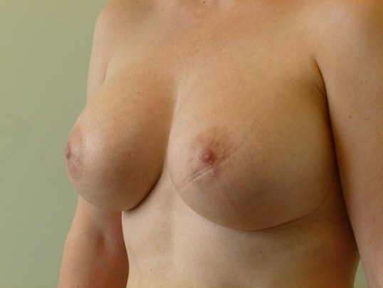 THREE QUARTER LEFT VIEW After Breast Revision