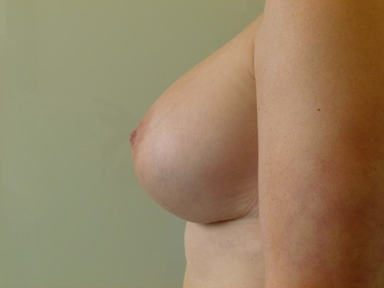 LEFT VIEW After Breast Revision