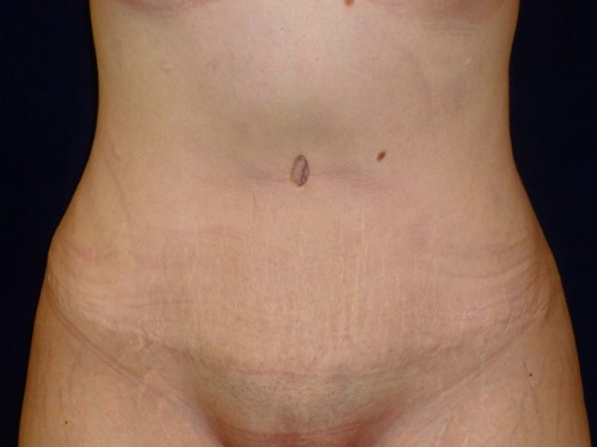 TUMMY TUCK & LIPO: FRONT VIEW After Tummy Tuck and Lipo