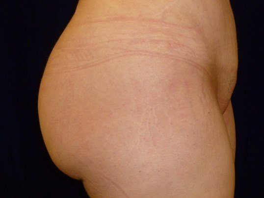 RIGHT SIDE VIEW After Buttock Augmentation