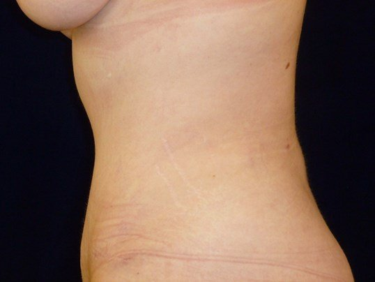 LEFT SIDE VIEW After Tummy Tuck and Lipo