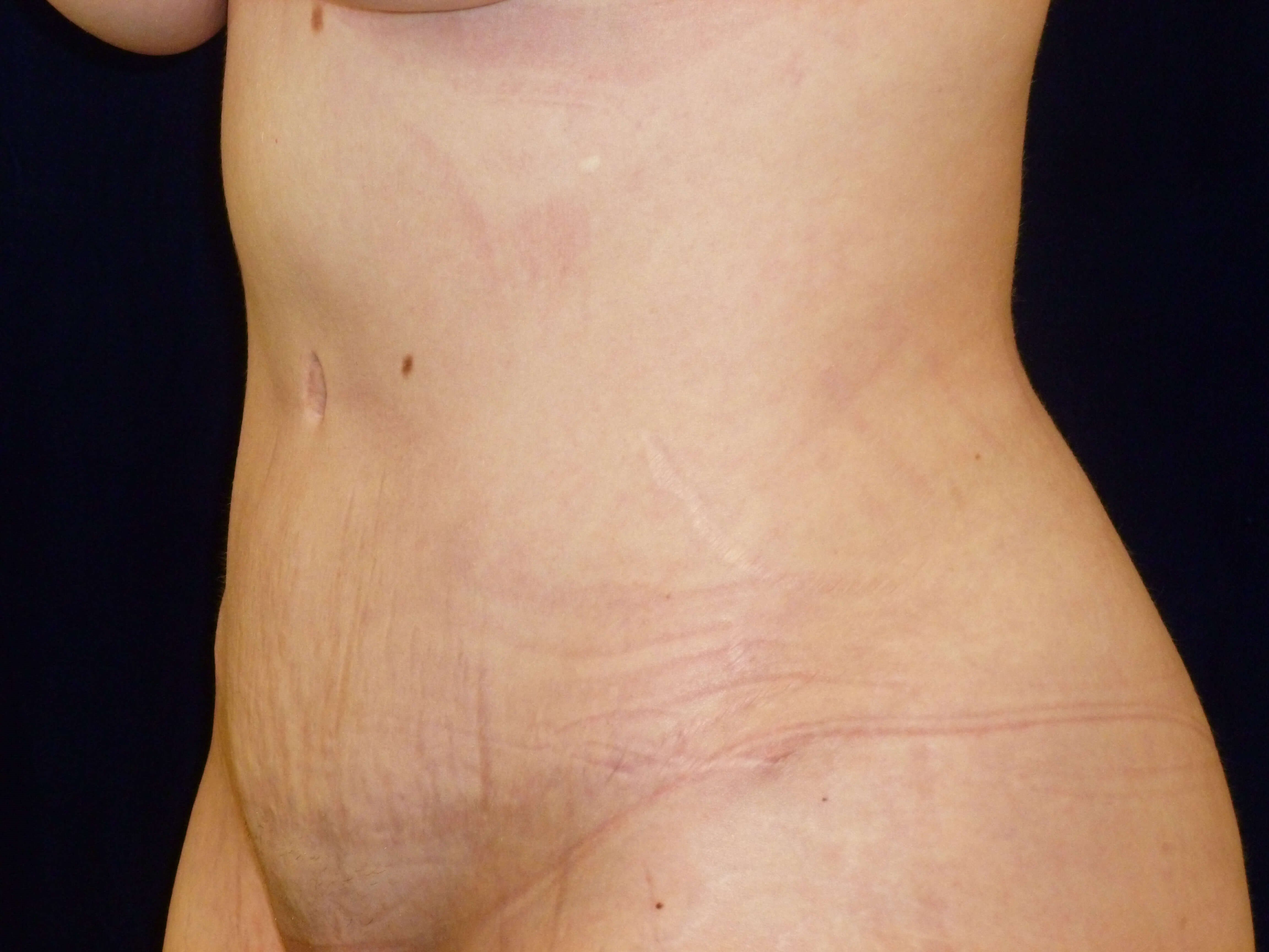 THREE QUARTER LEFT VIEW After Tummy Tuck and Lipo