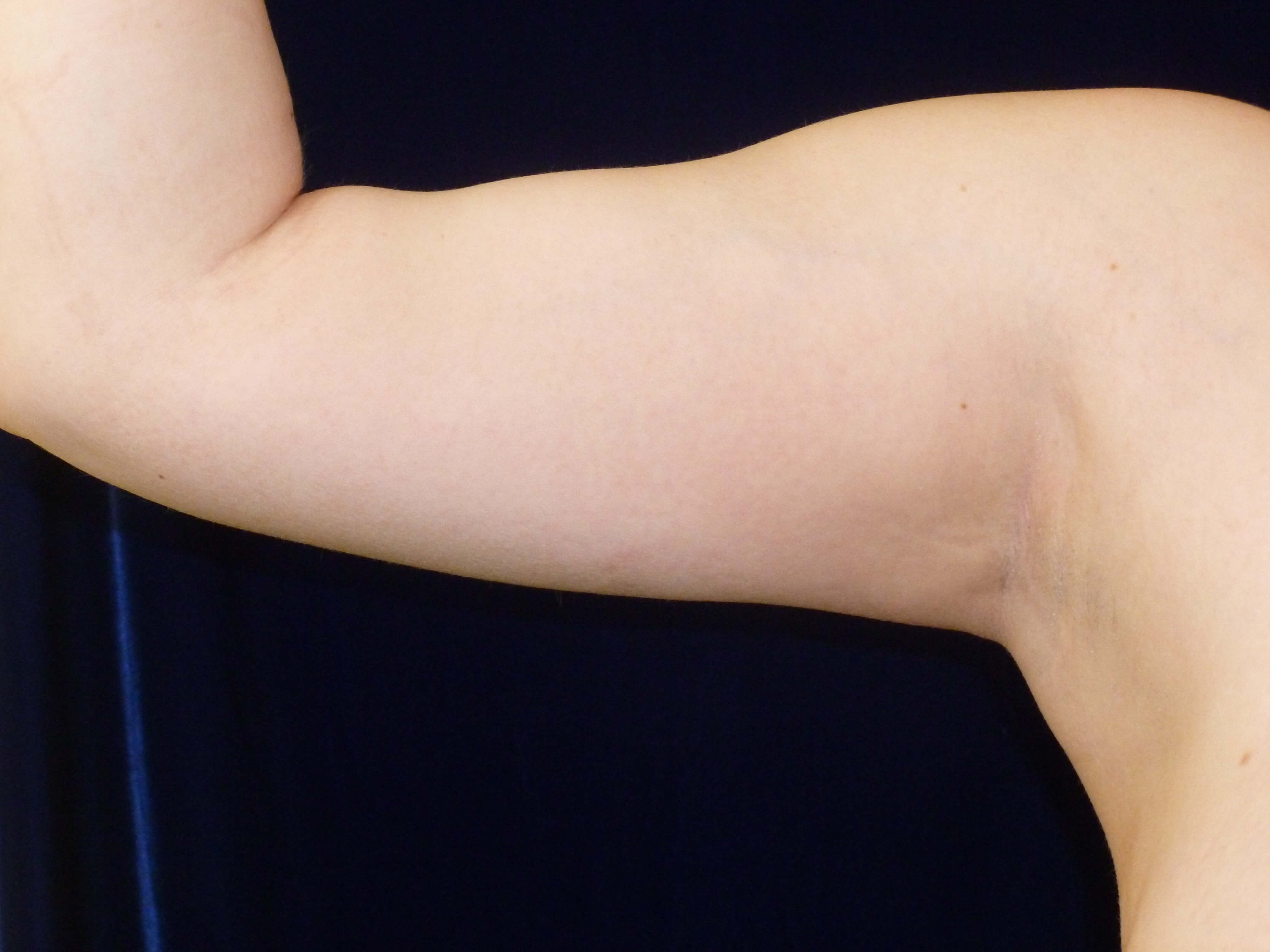 LIPOSUCTION: RIGHT ARM After lipo to arms