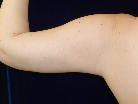 LIPOSUCTION: LEFT ARM After LIPO TO ARMS