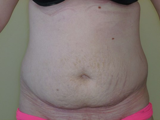 TUMMY TUCK & LIPO: FRONT VIEW Before Tummy Tuck and Lipo