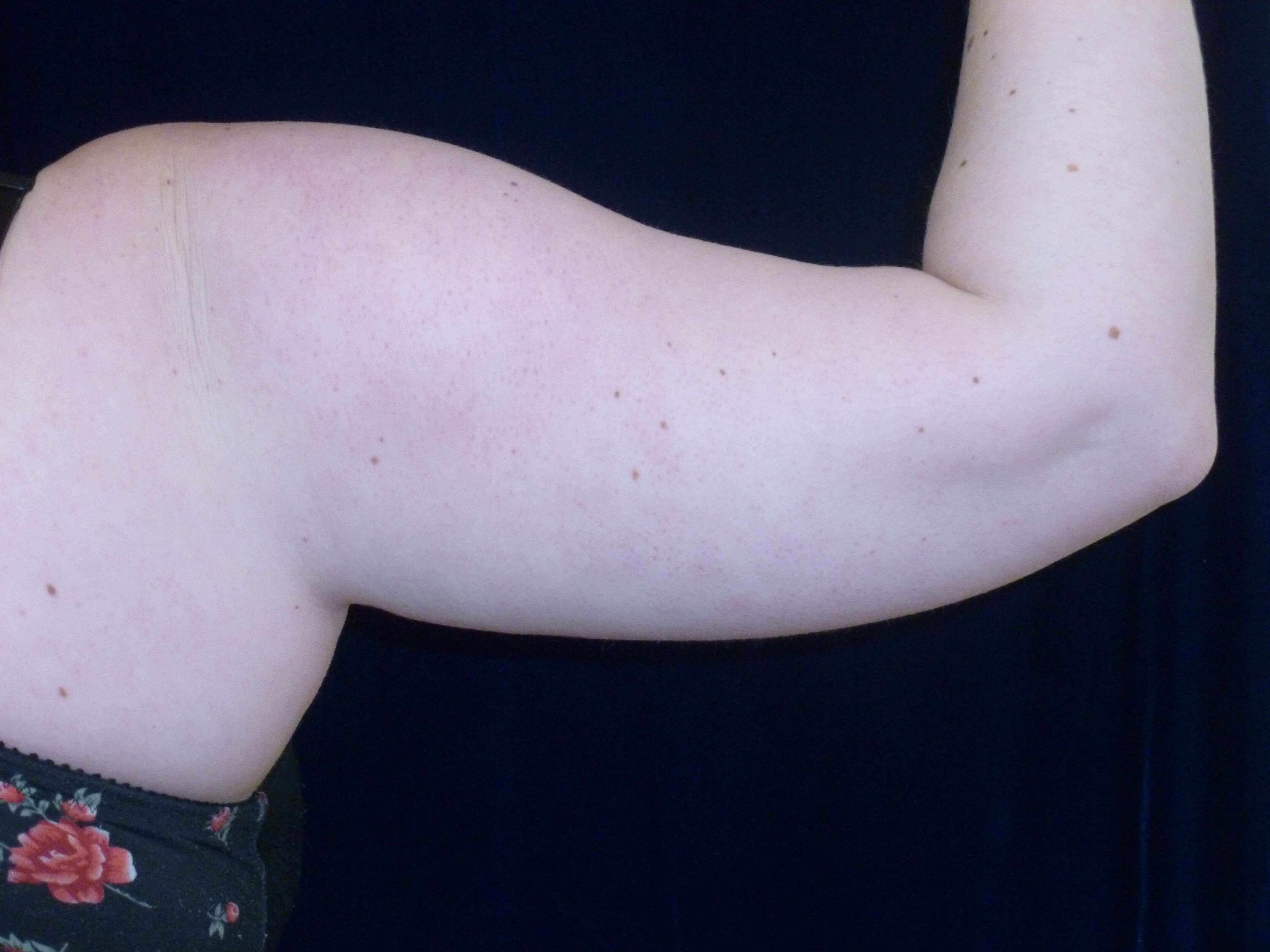 LIPOSUCTION: RIGHT ARM Before LIPO TO ARMS