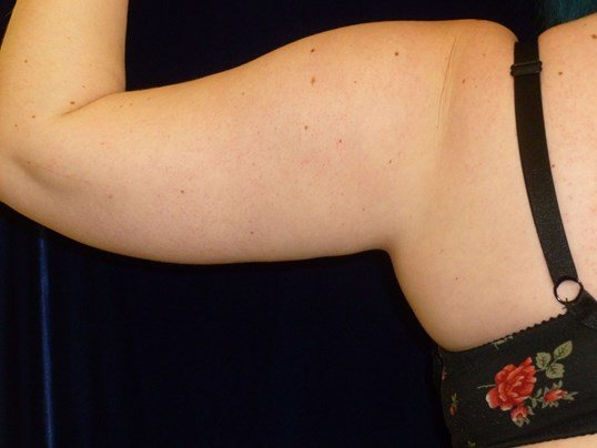 LIPOSUCTION: LEFT ARM Before LIPO TO ARMS