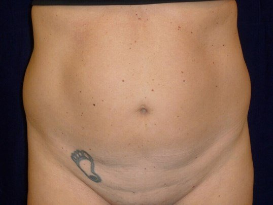 LIPOSUCTION FRONT VIEW Before Lipo To Abs and Flanks
