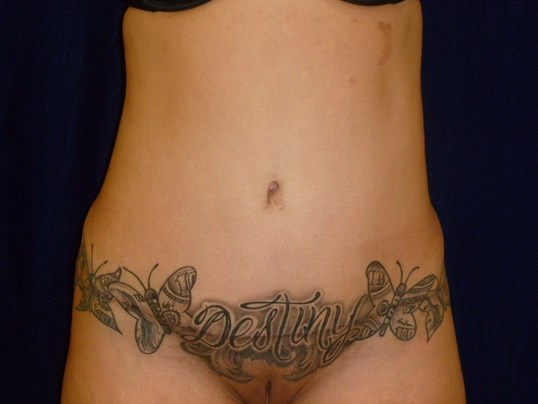 Before And After Tummy Tuck Liposuction Photos