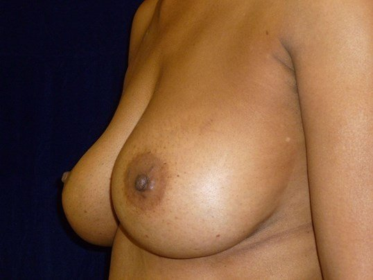 LEFT THREE QUARTER VIEW Before Breast Revision
