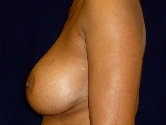 LEFT SIDE VIEW Before Breast Revision