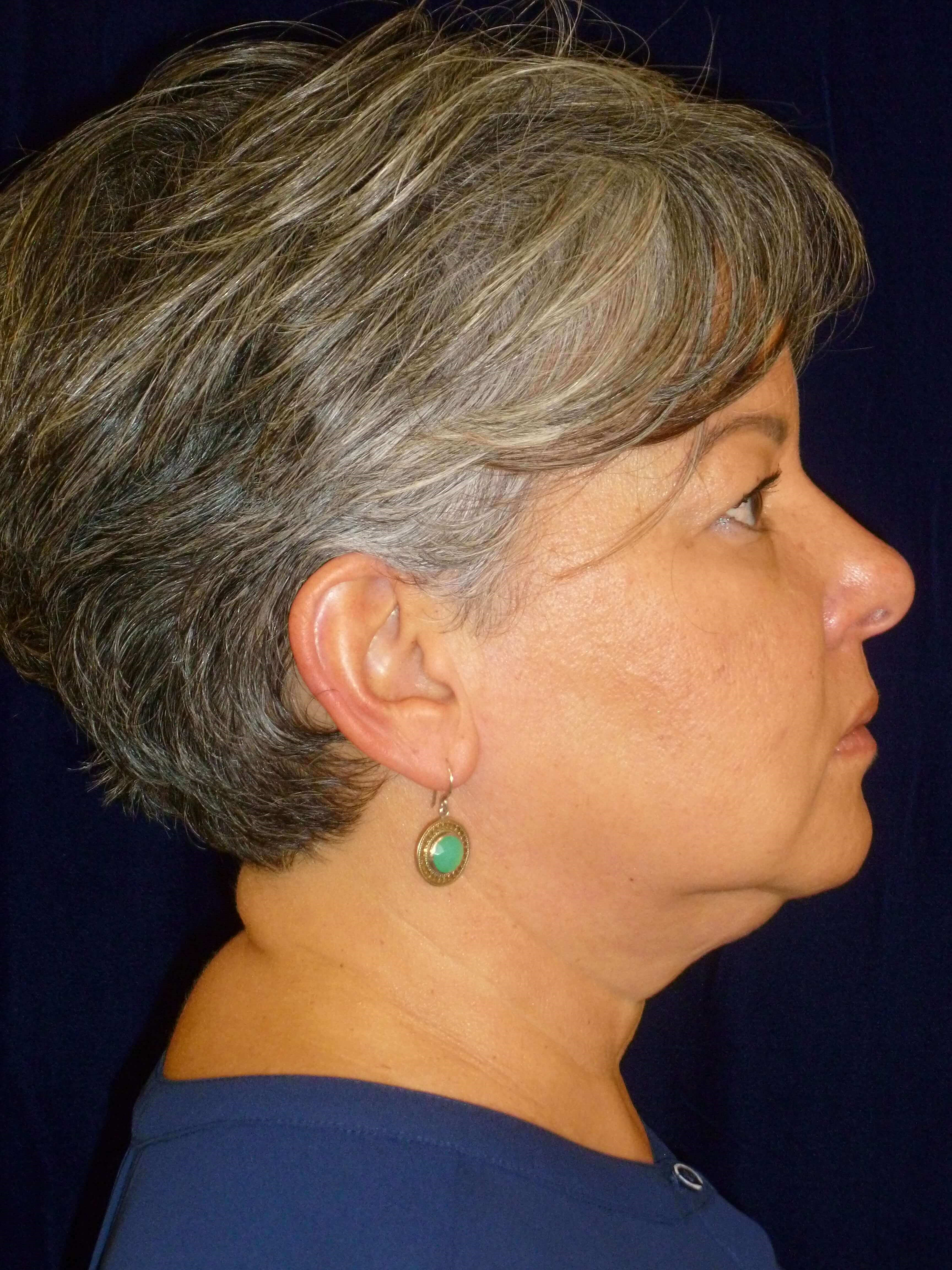 RIGHT SIDE VIEW Before FaceTite® and Lipo