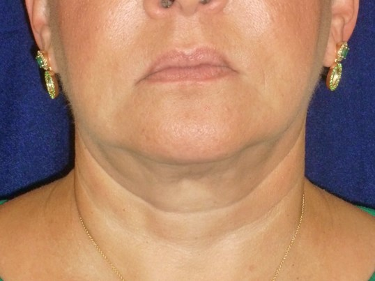 FaceTite® and Liposuction After FaceTite® and Lipo