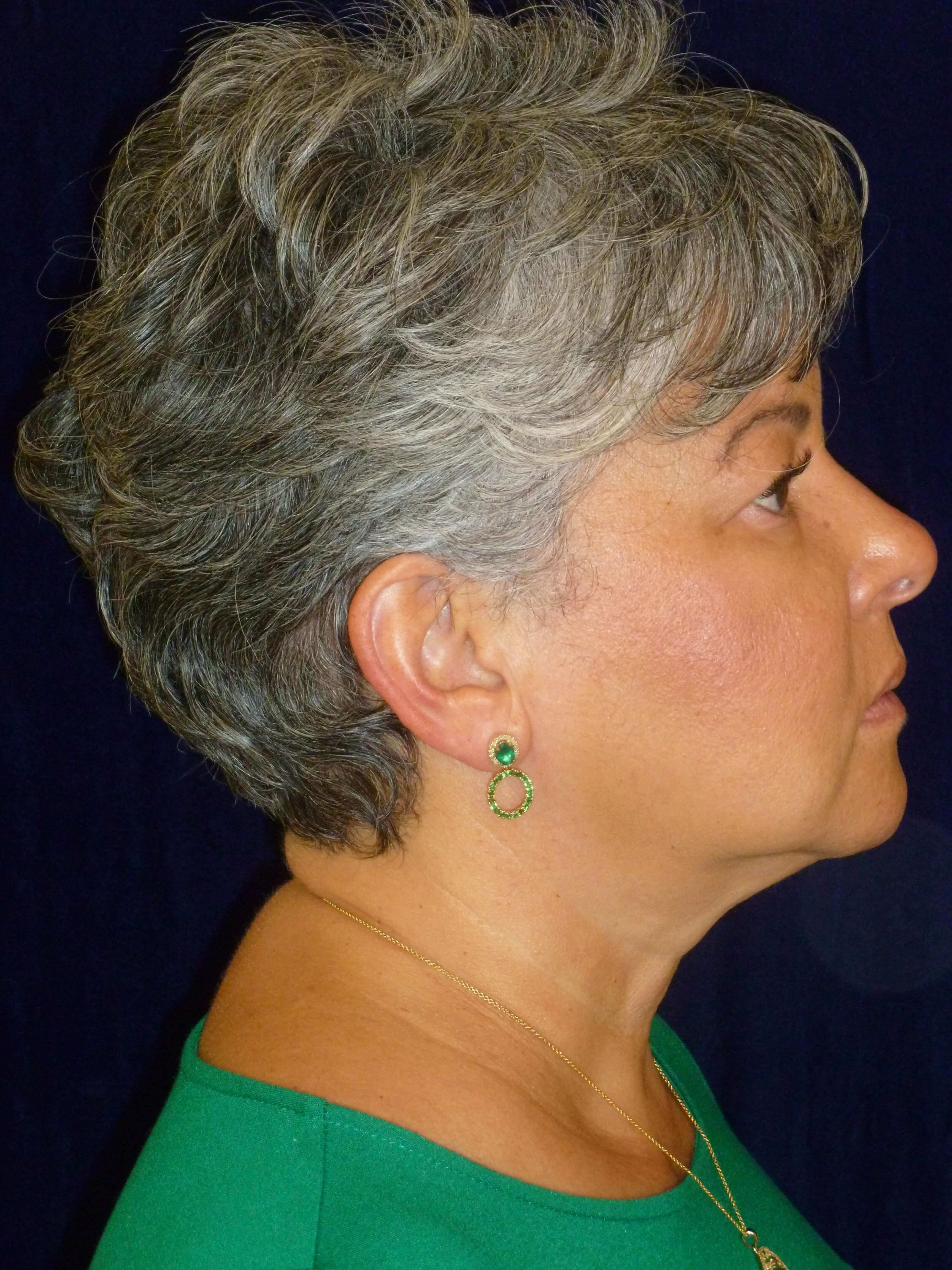 RIGHT SIDE VIEW After FaceTite® and Lipo