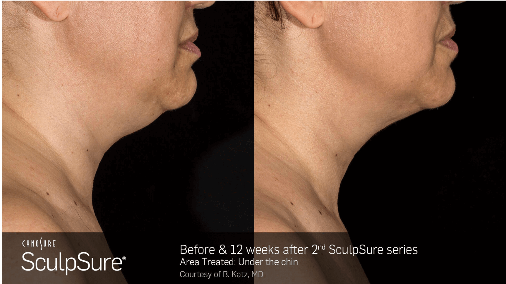 SculpSure: Side View After Sculpsure