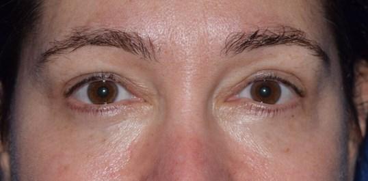 Rejuvenation Eyes with Blepharoplasty & Laser Treatment