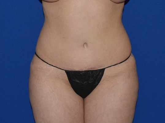 Hour Glass Waist after Liposuction, Chicago, IL