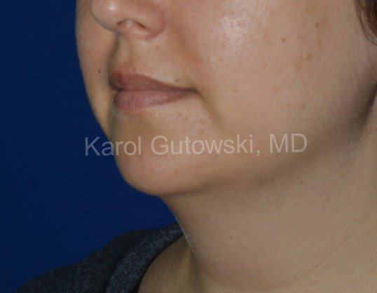 Youthful Neck after Laser Assisted Liposuction, Chicago, IL