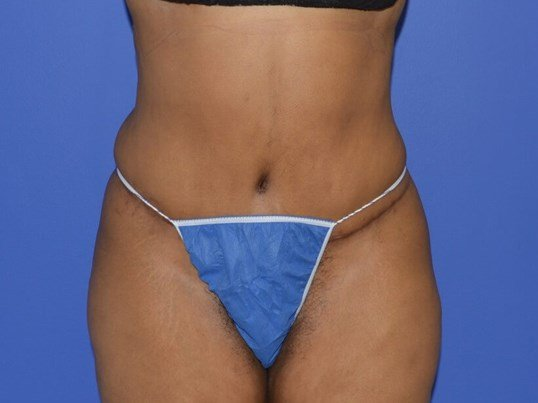 Combined No Drain Tummy Tuck and Power Liposuction, Chicago, IL