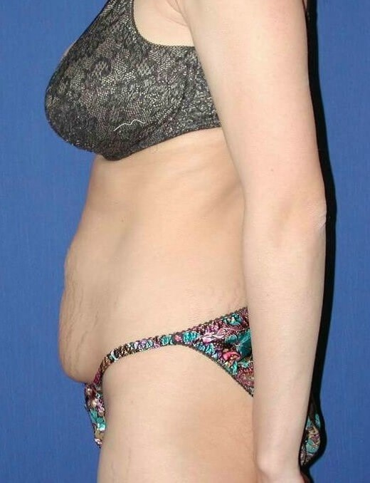 Stretched Out Abdomen after Twins Improved with No Drain Tummy Tuck
