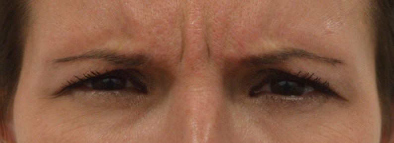 Brow Lines Before