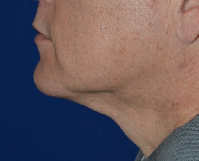 Left Side View After