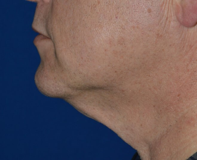 Left Side View Before