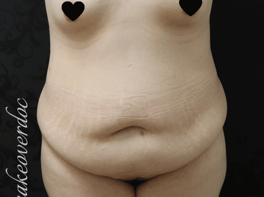 TummyTuck Before