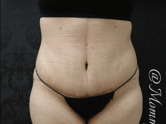 TummyTuck After
