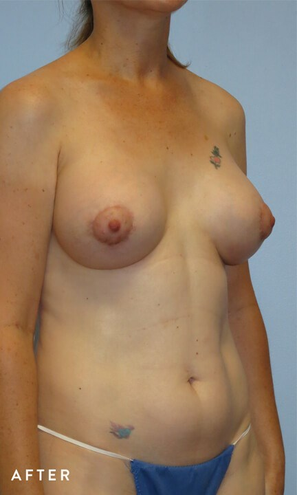 Right Oblique View After
