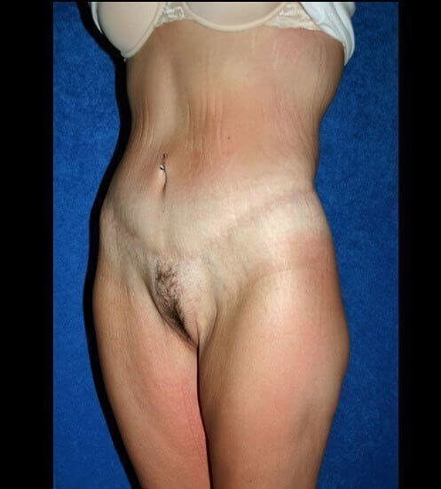 Total Body Lift After Weight Loss Surgery