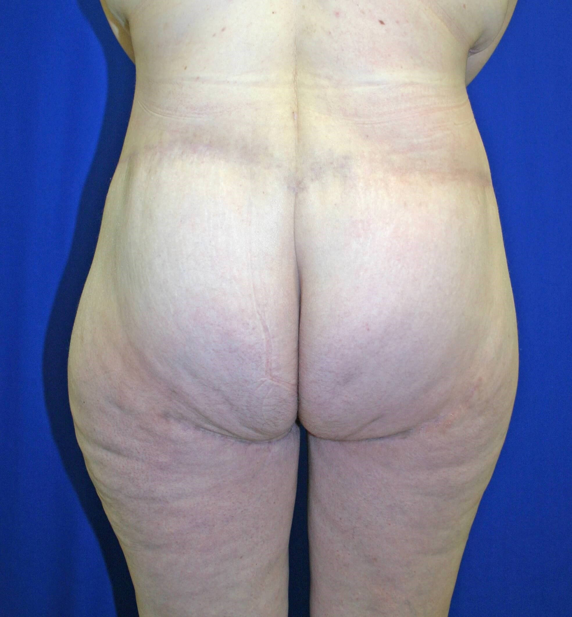 360 Body Lift and Thigh Lift After