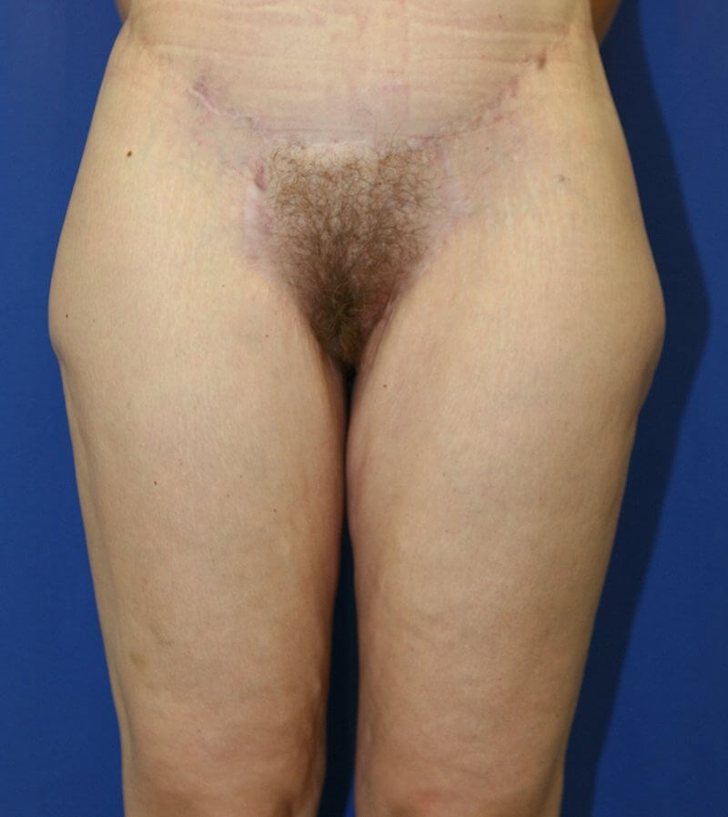 Crescent Thigh Lift #11 After